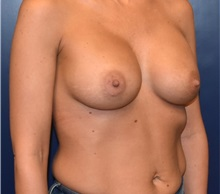 Breast Augmentation After Photo by Richard Reish, MD, FACS; New York, NY - Case 30938