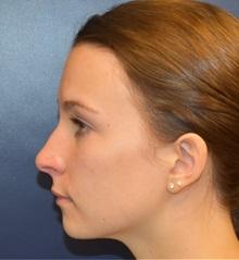 Rhinoplasty Before Photo by Richard Reish, MD, FACS; New York, NY - Case 30939