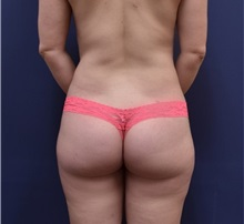Buttock Lift with Augmentation After Photo by Richard Reish, MD, FACS; New York, NY - Case 30949
