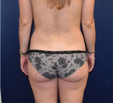 Buttock Lift with Augmentation Before Photo by Richard Reish, MD, FACS; New York, NY - Case 30949