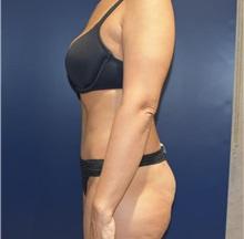 Tummy Tuck After Photo by Richard Reish, MD, FACS; New York, NY - Case 30951