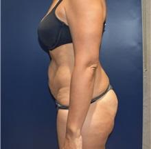 Tummy Tuck Before Photo by Richard Reish, MD, FACS; New York, NY - Case 30951
