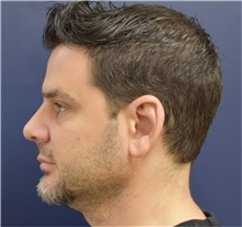 Rhinoplasty After Photo by Richard Reish, MD, FACS; New York, NY - Case 30954