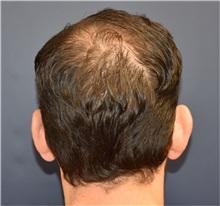 Ear Surgery Before Photo by Richard Reish, MD, FACS; New York, NY - Case 30955