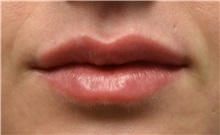 Lip Augmentation / Enhancement After Photo by Richard Reish, MD, FACS; New York, NY - Case 30957