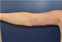 Arm Lift After Photo by Richard Reish, MD, FACS; New York, NY - Case 30961