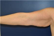 Arm Lift Before Photo by Richard Reish, MD, FACS; New York, NY - Case 30961