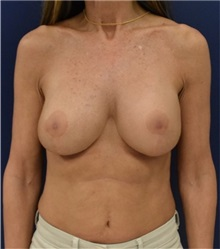 Breast Augmentation After Photo by Richard Reish, MD, FACS; New York, NY - Case 30963