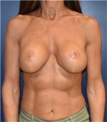 Breast Augmentation Before Photo by Richard Reish, MD, FACS; New York, NY - Case 30963
