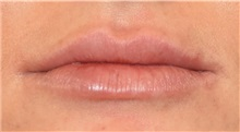 Lip Augmentation / Enhancement After Photo by Richard Reish, MD, FACS; New York, NY - Case 30969