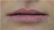 Lip Augmentation / Enhancement Before Photo by Richard Reish, MD, FACS; New York, NY - Case 30969