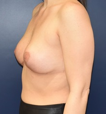 Breast Reduction After Photo by Richard Reish, MD, FACS; New York, NY - Case 30971