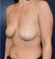 Breast Reduction Before Photo by Richard Reish, MD, FACS; New York, NY - Case 30971