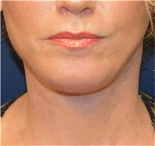 Facelift After Photo by Richard Reish, MD, FACS; New York, NY - Case 30972