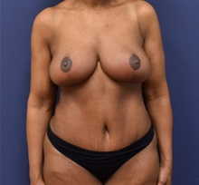 Tummy Tuck After Photo by Richard Reish, MD, FACS; New York, NY - Case 32659