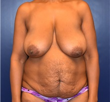 Tummy Tuck Before Photo by Richard Reish, MD, FACS; New York, NY - Case 32659