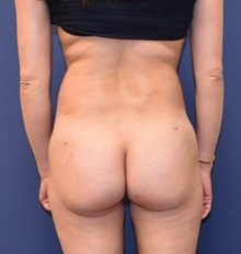 Buttock Lift with Augmentation After Photo by Richard Reish, MD, FACS; New York, NY - Case 32660