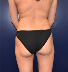 Buttock Lift with Augmentation Before Photo by Richard Reish, MD, FACS; New York, NY - Case 32660