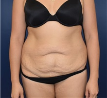 Tummy Tuck Before Photo by Richard Reish, MD, FACS; New York, NY - Case 32662