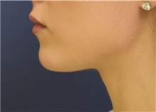 Chin Augmentation After Photo by Richard Reish, MD, FACS; New York, NY - Case 32663