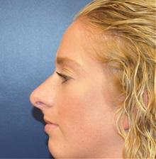Rhinoplasty Before Photo by Richard Reish, MD, FACS; New York, NY - Case 32673