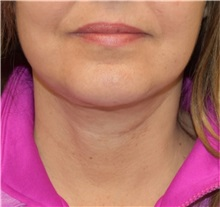 Facelift After Photo by Richard Reish, MD, FACS; New York, NY - Case 32675