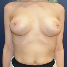 Breast Lift Before Photo by Richard Reish, MD, FACS; New York, NY - Case 32677