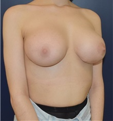 Breast Lift After Photo by Richard Reish, MD, FACS; New York, NY - Case 32677