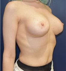 Breast Lift Before Photo by Richard Reish, MD, FACS; New York, NY - Case 32677
