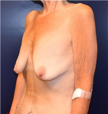 Breast Lift Before Photo by Richard Reish, MD, FACS; New York, NY - Case 32678