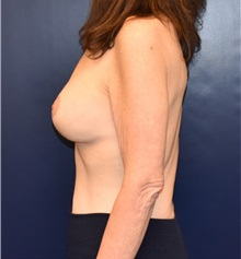 Breast Lift After Photo by Richard Reish, MD, FACS; New York, NY - Case 32678