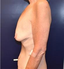 Breast Lift Before Photo by Richard Reish, MD, FACS; New York, NY - Case 32678