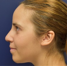Rhinoplasty After Photo by Richard Reish, MD, FACS; New York, NY - Case 32682