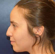 Rhinoplasty Before Photo by Richard Reish, MD, FACS; New York, NY - Case 32682