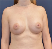 Breast Augmentation After Photo by Richard Reish, MD, FACS; New York, NY - Case 32683