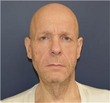 Facelift Before Photo by Richard Reish, MD, FACS; New York, NY - Case 32688