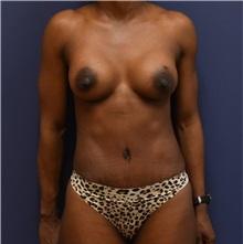Tummy Tuck After Photo by Richard Reish, MD, FACS; New York, NY - Case 32691