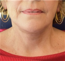 Facelift After Photo by Richard Reish, MD, FACS; New York, NY - Case 32831