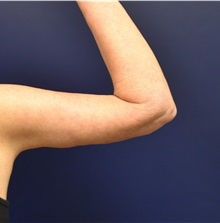 Arm Lift After Photo by Richard Reish, MD, FACS; New York, NY - Case 32832
