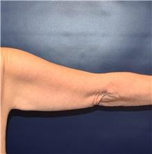Arm Lift Before Photo by Richard Reish, MD, FACS; New York, NY - Case 32832