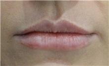 Lip Augmentation / Enhancement Before Photo by Richard Reish, MD, FACS; New York, NY - Case 32833
