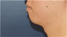 Chin Augmentation Before Photo by Richard Reish, MD, FACS; New York, NY - Case 32835