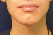 Chin Augmentation After Photo by Richard Reish, MD, FACS; New York, NY - Case 32838