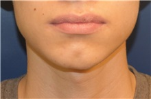 Chin Augmentation Before Photo by Richard Reish, MD, FACS; New York, NY - Case 32838