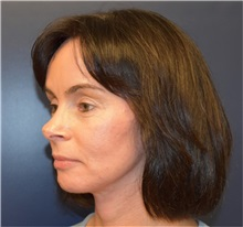 Facelift After Photo by Richard Reish, MD, FACS; New York, NY - Case 32839