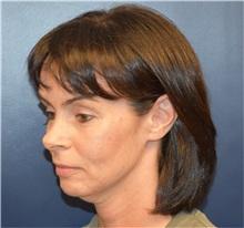 Facelift Before Photo by Richard Reish, MD, FACS; New York, NY - Case 32839