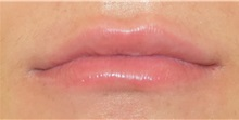 Lip Augmentation / Enhancement After Photo by Richard Reish, MD, FACS; New York, NY - Case 32841