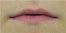 Lip Augmentation / Enhancement Before Photo by Richard Reish, MD, FACS; New York, NY - Case 32841