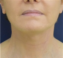 Facelift After Photo by Richard Reish, MD, FACS; New York, NY - Case 32842