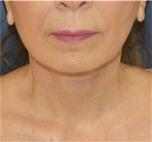 Facelift After Photo by Richard Reish, MD, FACS; New York, NY - Case 32843